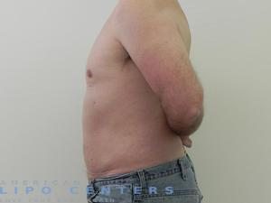 abdomen laser liposuction before and after