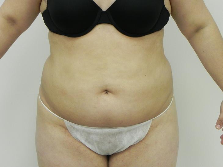 abdomen liposuction before  u0026 after photos