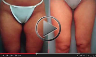 American-Lipo-Centers-Video-Dr.-Joel-Singer