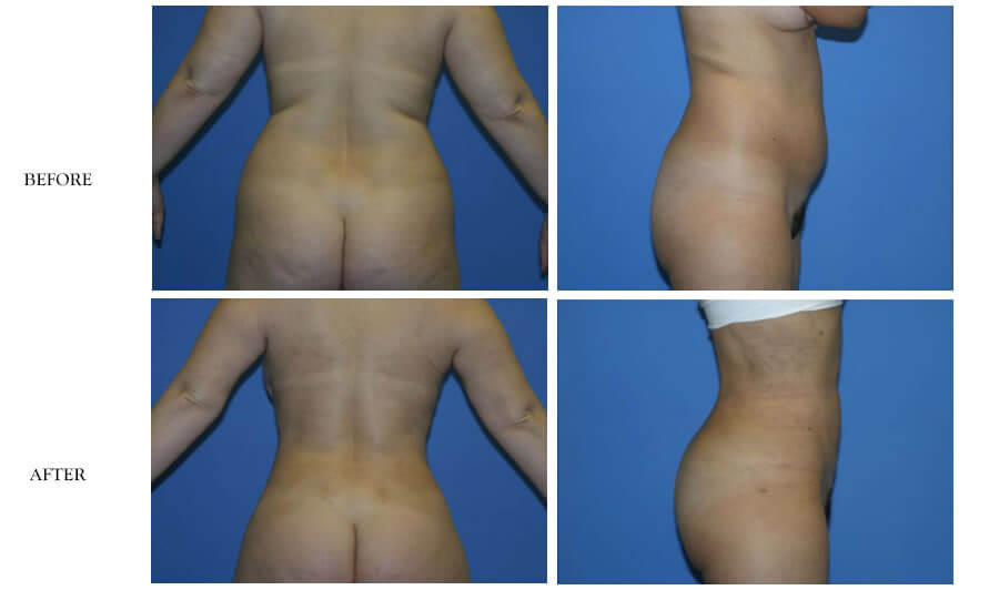 American Lipo Center Brazilian Butt Lift