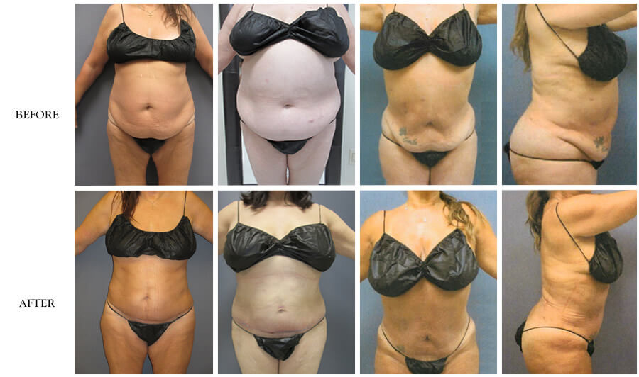 American Lipo Center Mini Tummy Tuck